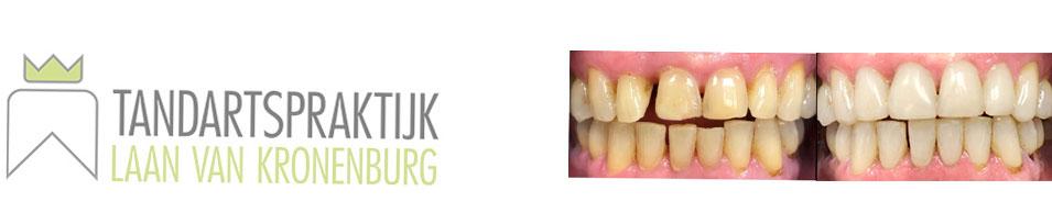 Cosmetische-tandheelkunde-behandeling-Kronenburg-Amstelveen-before--after
